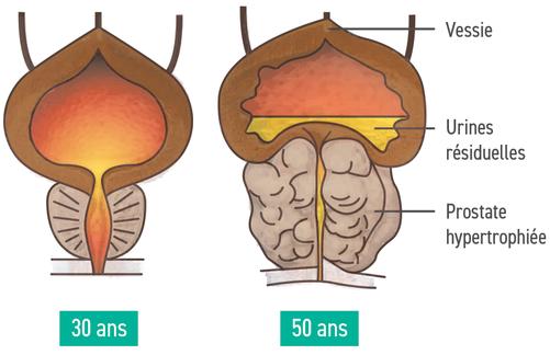 come si cura un tumore alla prostata a 80 annie